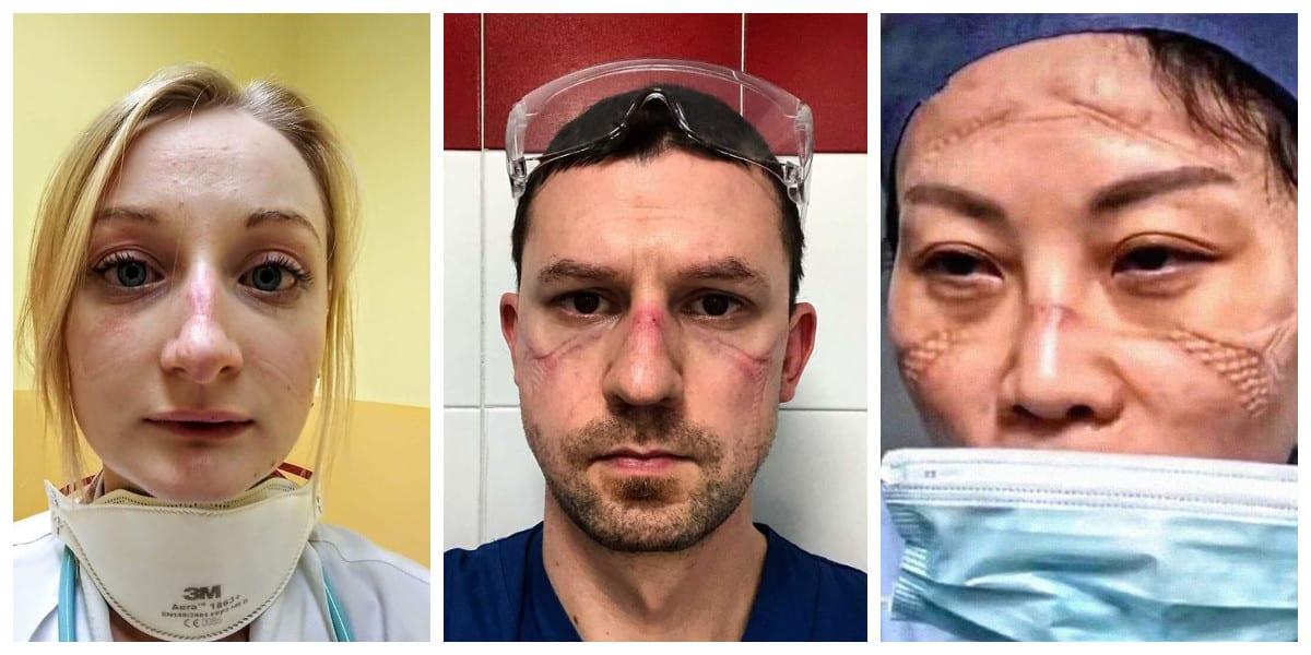 Эмоциональные фото изможденных врачей, часами не снимающих ...