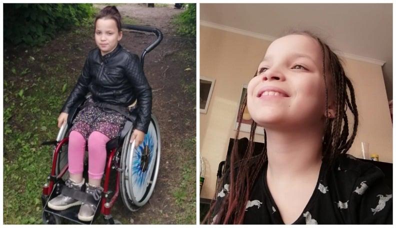 10-летней Селине из Бауски нужна помощь на оплату операции на ногах