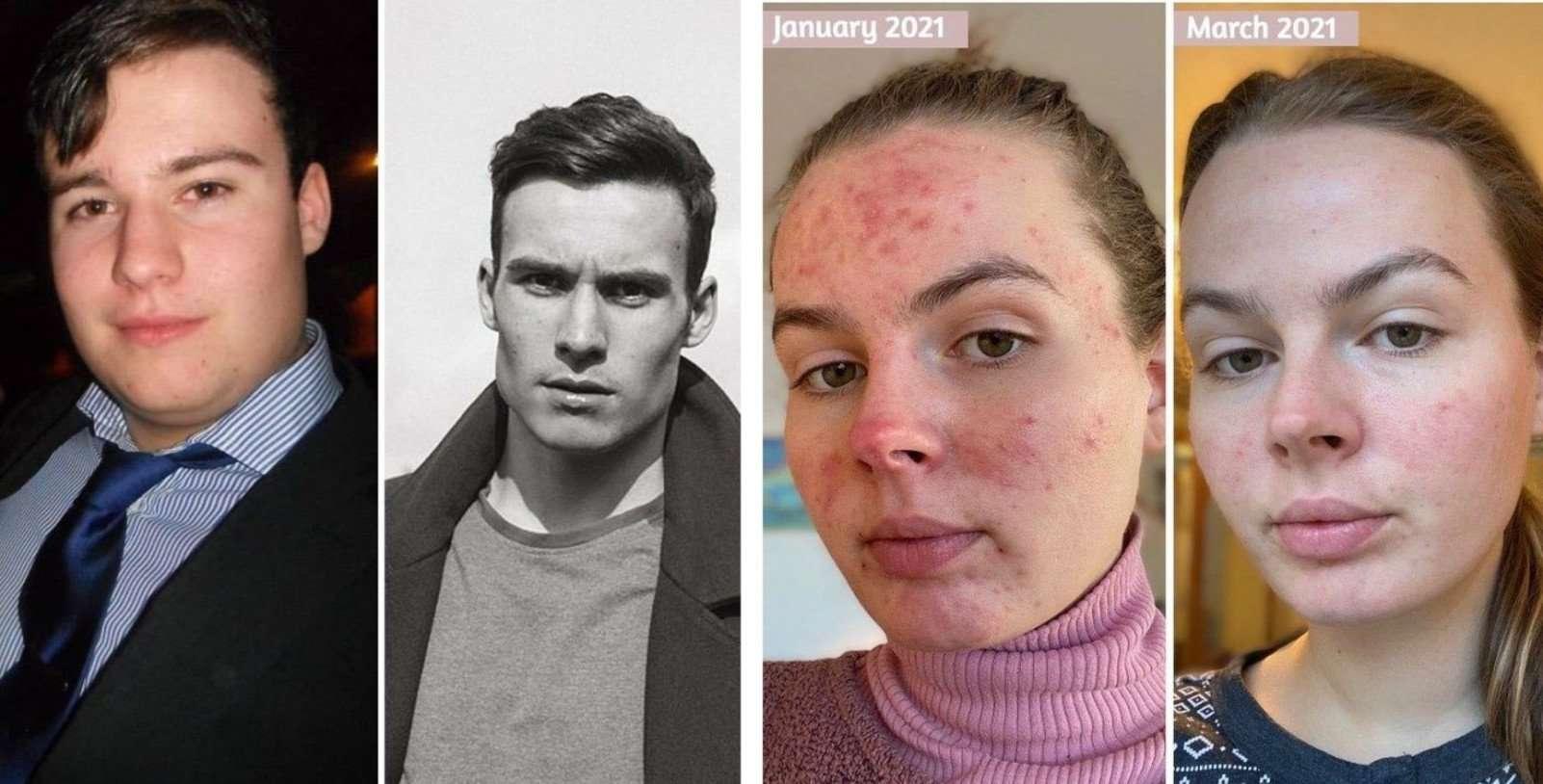 20 фото «до и после», от людей, которые отказались плыть по течению