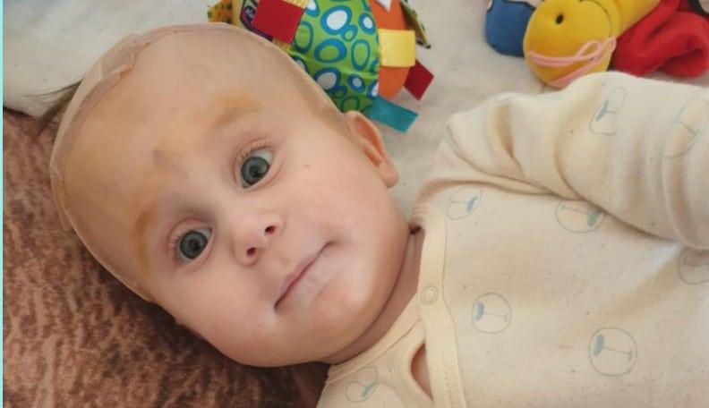 11-месячному Илье срочно нужна помощь на оплату операции