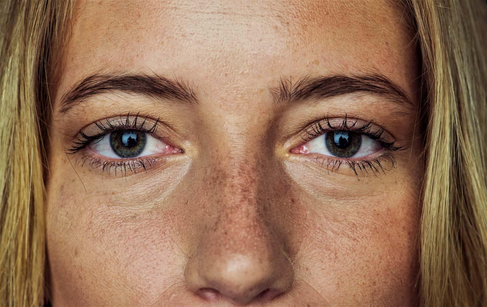 Помимо кремов и процедур: как избавиться от кругов под глазами