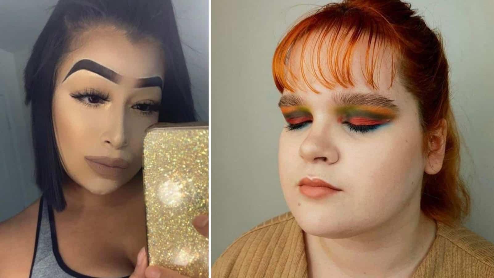 17 девушек, которым лучше было бы не ходить к косметологу, а оставить всё как есть